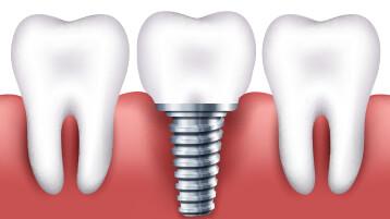 Implantología<br /> Oral